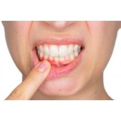 Diş Eti Kanaması Nasıl Önlendir?